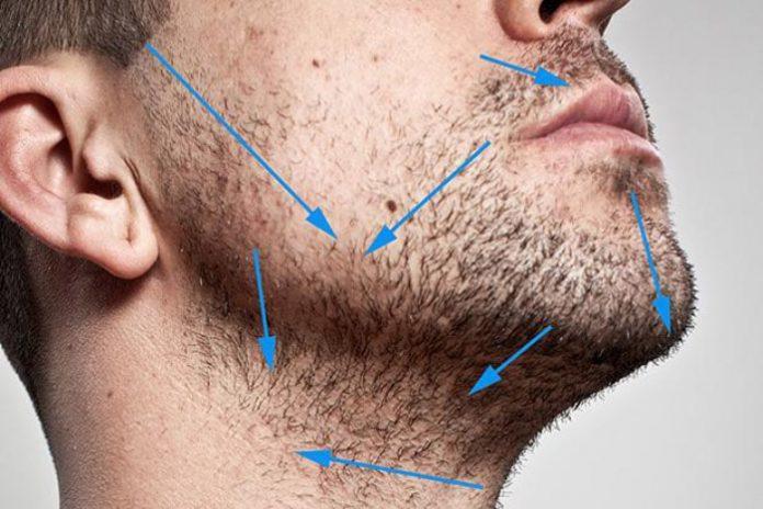 Можно ли изменить направление роста волос на бороде?