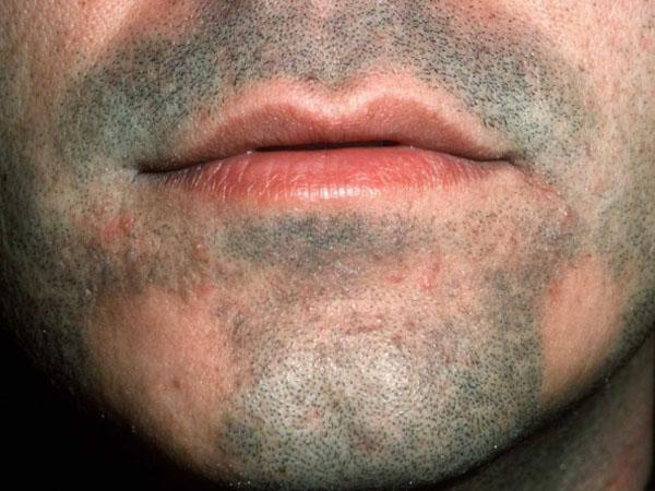 Облысение бороды у мужчин местами